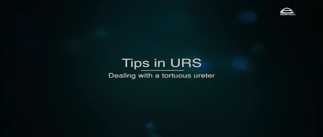 NewTIPS IN URS.- Dealing with a tortuous ureter folder
