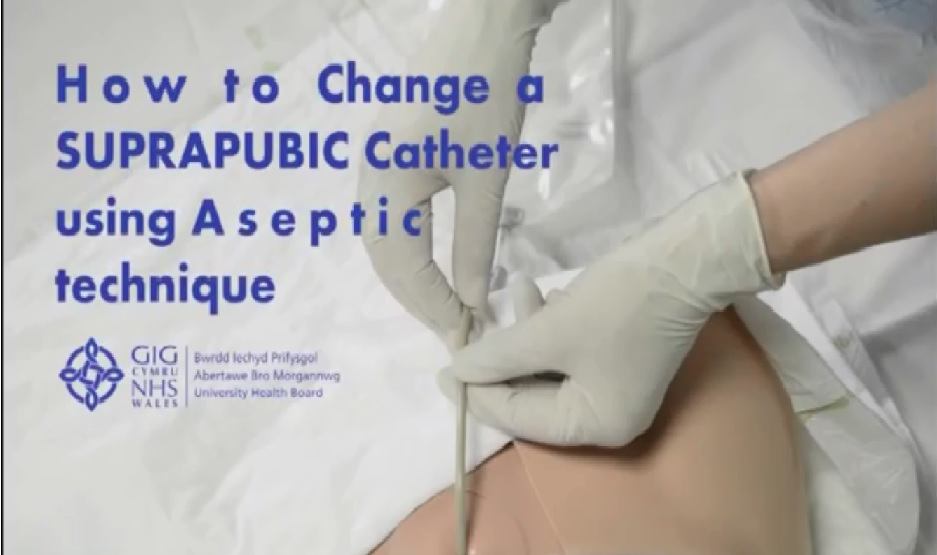 HOW TO CGANGE A SUPRAPUBIC CATHETER