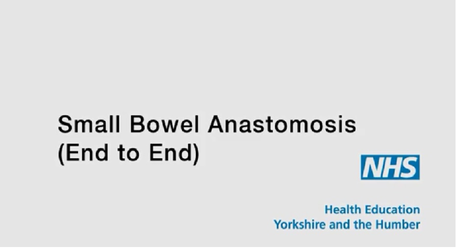 end to end small bowel anastomosis