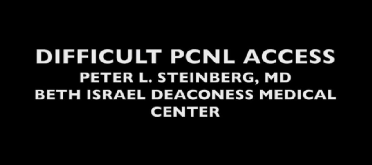 DIFFICULT PCNL ACCESS /KEY POINT