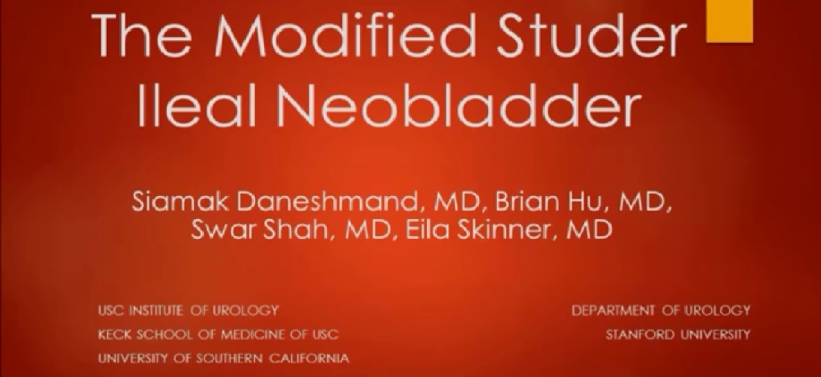 The modified studer ileal neobladder
