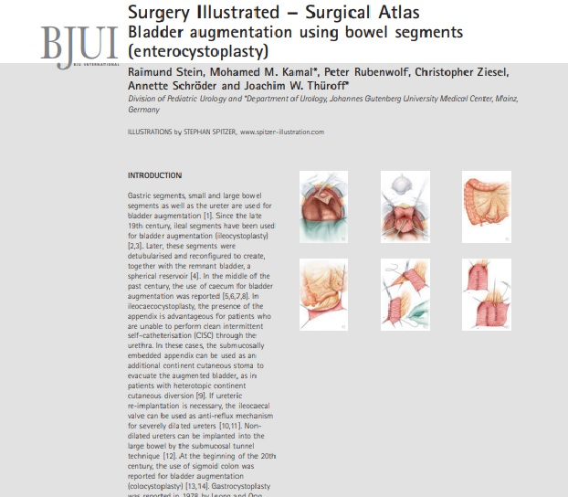 Surgery Illustrated –Surgical Atlas Bladder augmentation using bowel segments (enterocystoplasty)