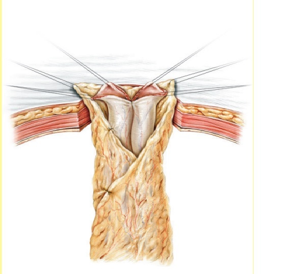 CUTANEOUS URETEROSTOMY FOR ADULTS AS AN ALTERNATIVE TO THE ILEAL CONDUIT