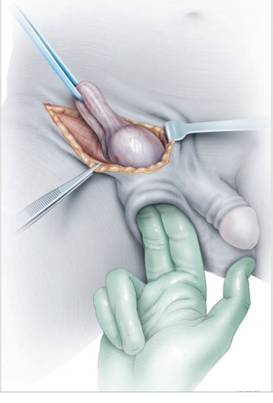 Radical orchiectomy