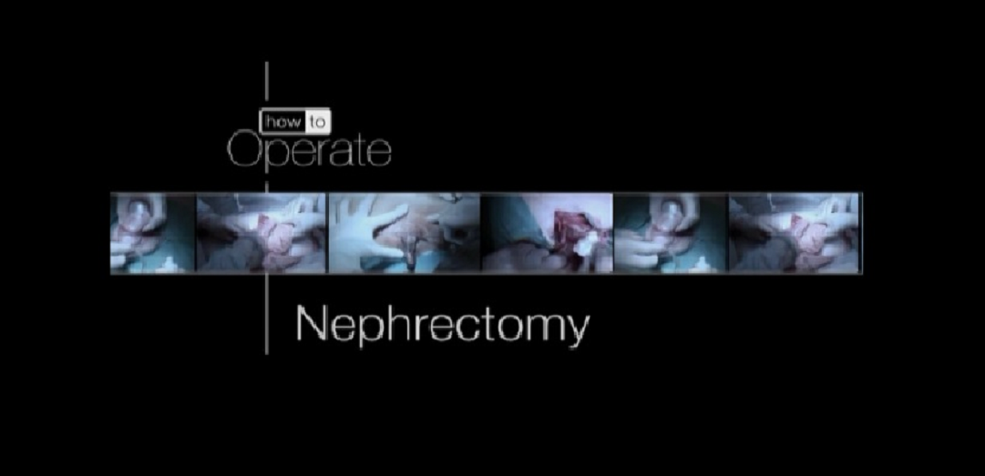 (simple nephrectomy)part-1