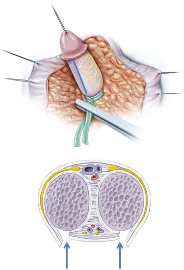 surgery of congenital Adernal Hyperplasia